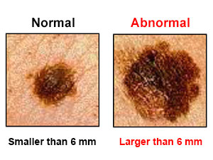 Normal and abnormal size of moles