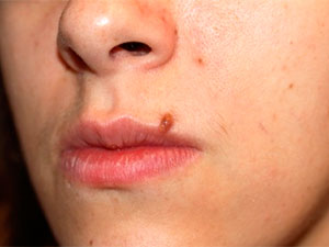 Moles on face