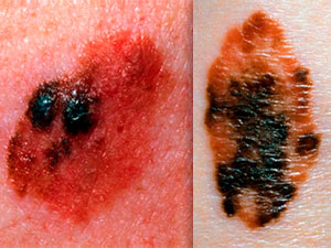 Watch out for bleeding and spreading moles