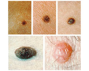 Examples of Common Moles