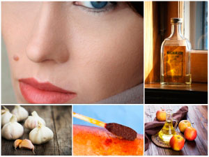 Natural ways for face mole removal