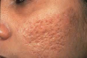 Cystic acne scarring