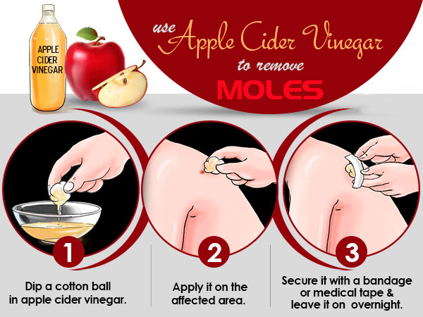 Use Apple Cider Vinegar to Remove Moles