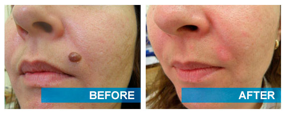 Before and after cryotherapy mole removal