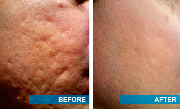 Laser acne scar removal before and after pictures