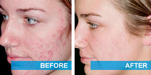 Before and after getting rid of acne scars