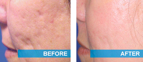 Before and after laser acne scars removal