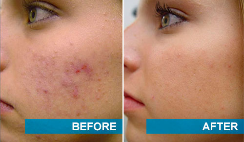 Before and after acne scars removal