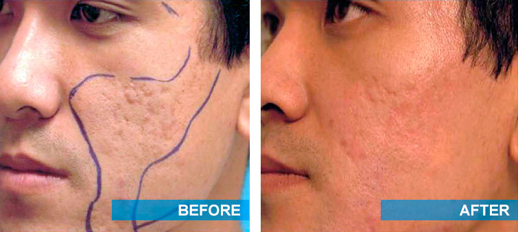 Before and after acne scars treatment with laser surgery