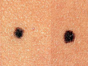 Double black moles