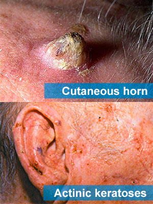 Cutaneous horn and Actinic keratoses