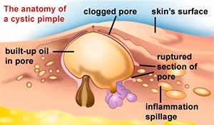 The anatomy of a cystic pimple