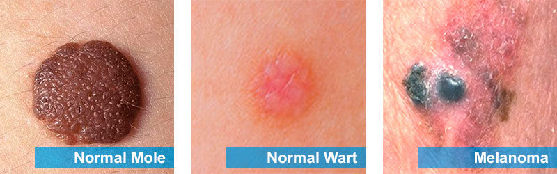 Normal mole, wart and melanoma