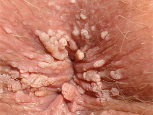 Anal warts