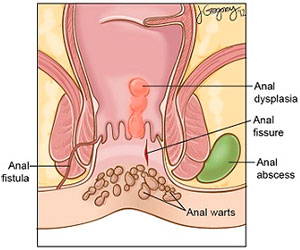 Anal warts and anal dysplasia