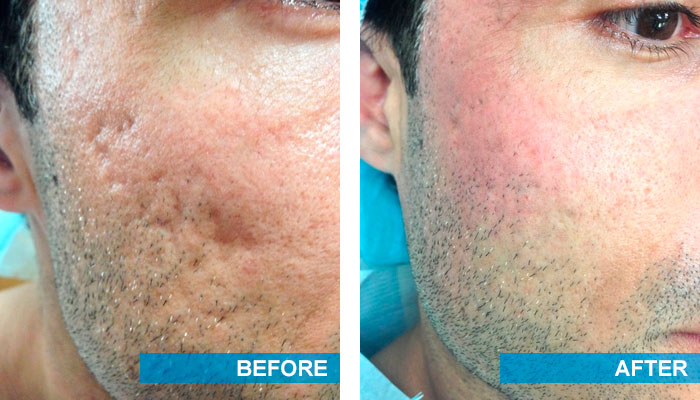 Before and after acne scars treatment 1