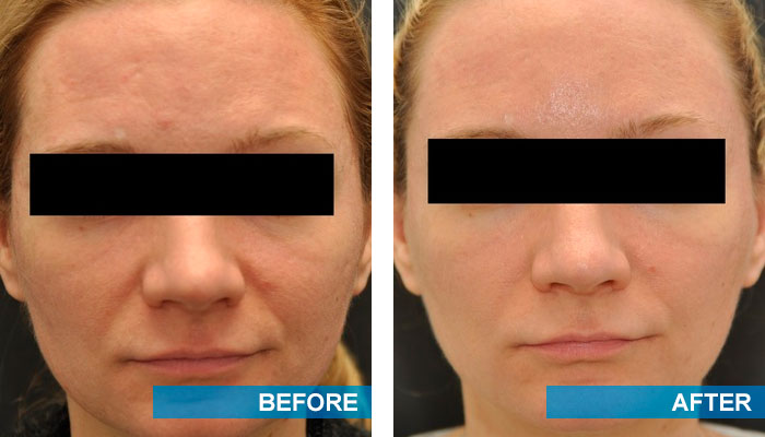 Before and after acne scars treatment 6