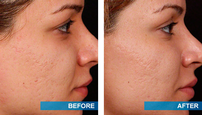 Before and after acne scars treatment 5