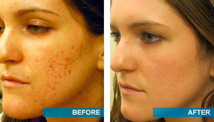 Before and after acne scars treatment 4