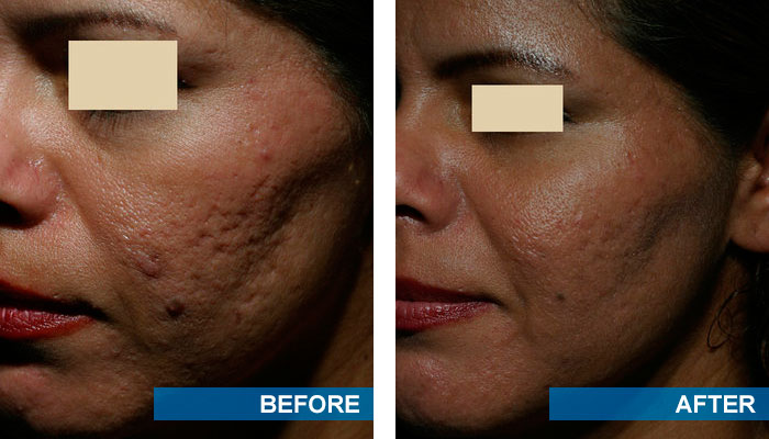 Before and after acne scars treatment 2