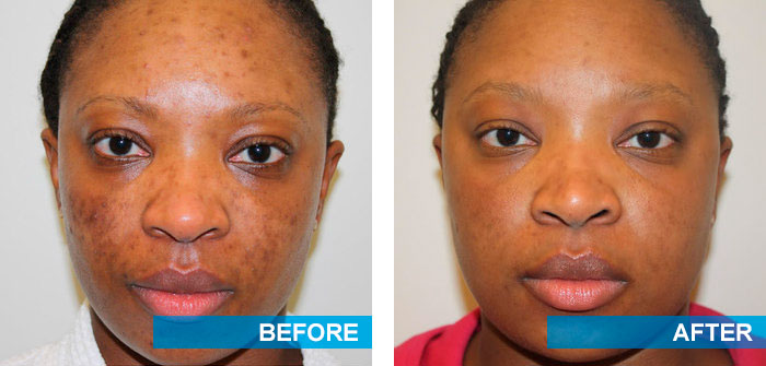 Before and after acne scars treatment 3