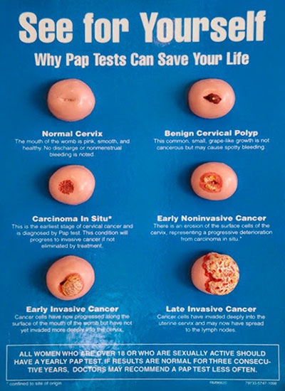 See for Yourself Why Pap Tests Can Save Your Life