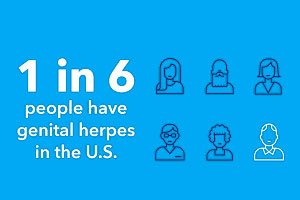 1 in 6 people have genital herpes in the U.S.
