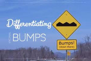 Differentiating vaginal bumps