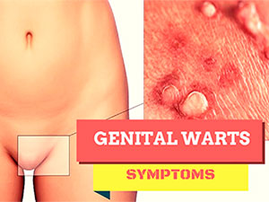 Genital warts symptoms at woman