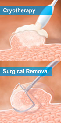 Surgical procedures for warts removal