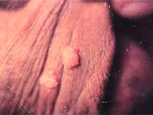 Warts in rectal area
