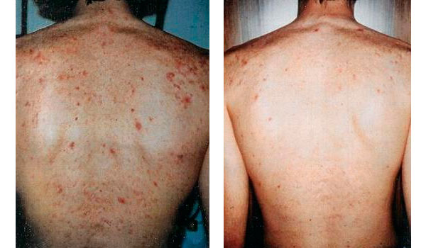 Back acne: before and after
