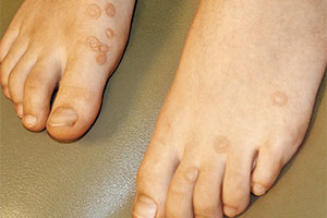 Wart on the top of your feet