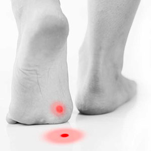 Complications of plantar warts