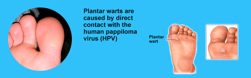 Plantar warts are caused by direct contact with the HPV