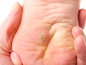 Plantar wart on your foot