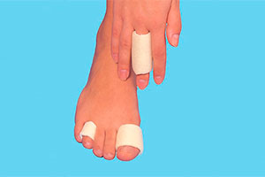 Toe bandaging