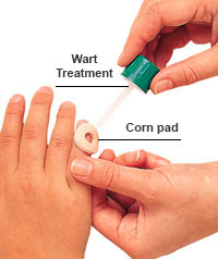 Corn pad wart treatment