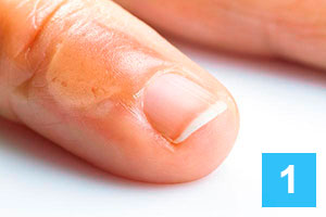 What Are The Different Stages Of Wart Removal