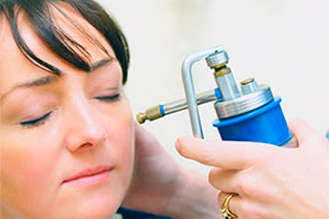 Cryotherapy for ears warts treatment