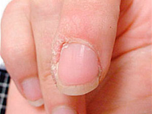HPV wart on finger