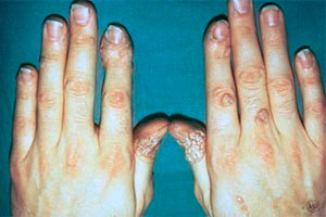 Warts on fingers