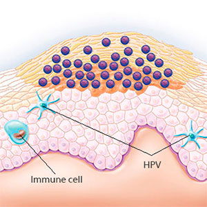 HPV and immune cell