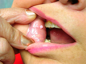 Wart in mouth
