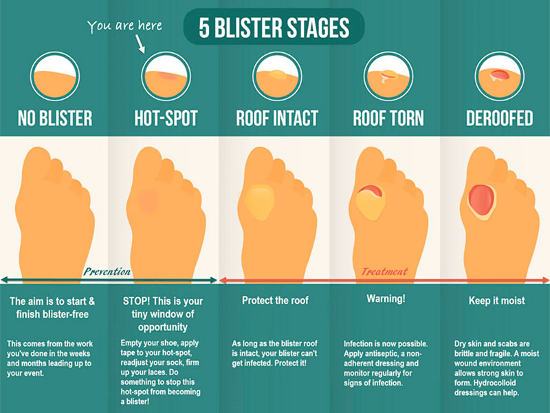 5 Blister Stages