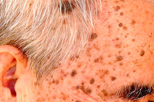 Older with seborrheic keratosis