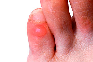Blister on toe
