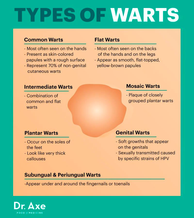 Infographic: Type of warts