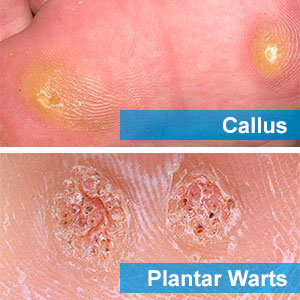 Callus and plantar warts