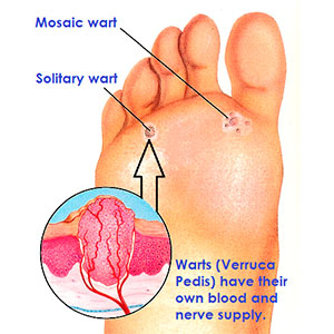 Magnificent What Is The Best Way To Remove A Wart Root Wiring 101 Archstreekradiomeanderfmnl